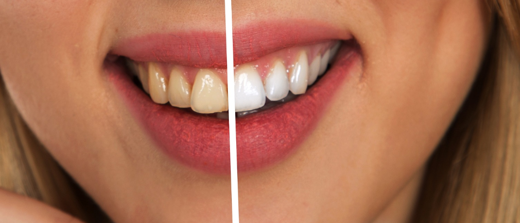 How to have stronger whiter teeth naturally