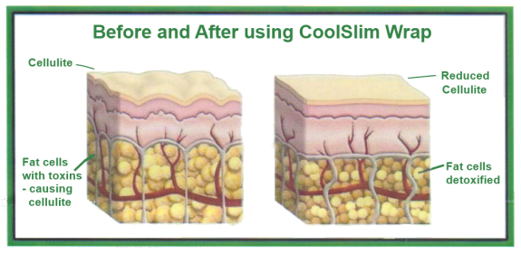 CoolSlim Body Wrap Tightens And Tones. Lose inches in 30 minutes!